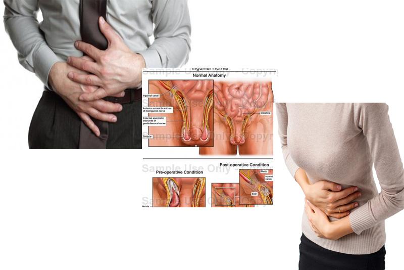 Perbedaan Penyakit Hernia Turun Berok Pada Pria Dan Wanita Guebanget Com