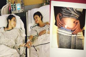 Penyakit Lupus dan Jenisnya Serta Komplikasinya