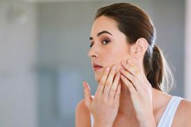 5 Cara Cegah Jerawat Berbekas Pada Wajah