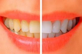 Trik Putihkan Gigi dengan Singkat dan Aman